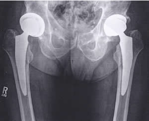 Scan.hip replacementsS